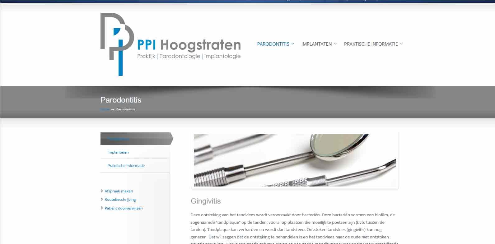 Parodontologie Praktijk voor implantaten België
